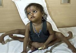 Menina que nasceu com 8 membros precisa de nova cirurgia e pai pede ajuda ao mundo