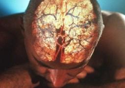 Você conhece os sintomas de um AVC (derrame)?