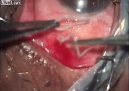 Chocante: Médicos removeram verme com 19 cm de comprimento do olho de um paciente