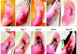 Vejam o que a diabetes pode fazer com o pé de uma pessoa em 10 dias