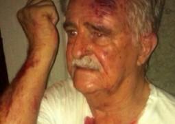 Senhor de 81 anos é agredido por universitário em festa de república