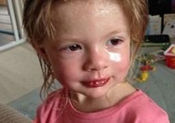 Ibuprofeno: Garota de 2 anos tem reação alérgica terrível e quase morre após tomar o medicamento