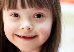Você sabe realmente o que é a Síndrome de Down?