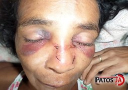 Mulher é agredida por travesti de Patos de Minas após discussão em bar