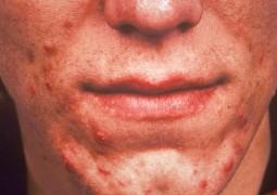 Roacutan: Os benefícios e os riscos no tratamento contra acnes