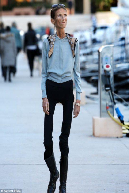 mais-anorexica-do-mundo-2