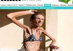 Mulher com 25,4 kg é considerada o caso mais grave de anorexia do mundo