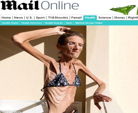 mais-anorexica-do-mundo