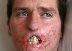 Homem perde as duas pernas, um braço e metade do rosto após comer carne com bactérias