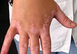 Medicamento é capaz de trazer pigmento da pele de volta a pessoas com vitiligo