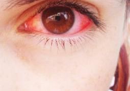 Xixi na água é a causa dos olhos vermelhos pós-piscina