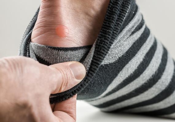 Acabe com as doloridas bolhas nos pés usando a pomadinha milagrosa/Foto: SOS Solteiros - UOL