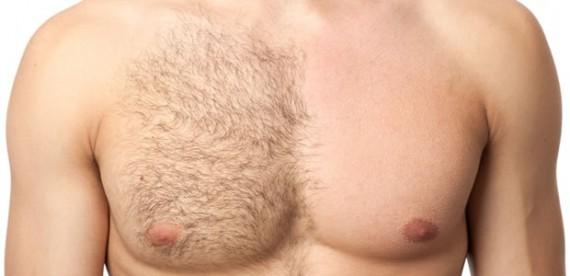 Homens sofrem após depilarem o peito/ Foto SOS Solteiros - UOL