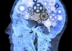 Seu cérebro sofre quando você não dorme direito