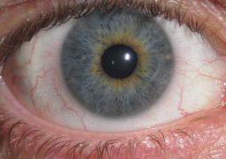 """Você já sentiu aquela """"tremedeira"""" que dá nas pálpebras ou na região dos olhos? Entenda o porquê!"""