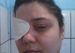 Moradora de São Gotardo pede ajuda para realizar procedimento cirúrgico urgente no rosto