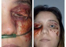 Após ser presa por enganar á todos com falsa infecção nos olhos em São Gotardo, mulher tem liberdade provisória concedida
