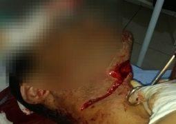 PM registra tentativa de homicídio em Guarda dos Ferreiros