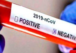 Notícia boa: Nove pessoas testam negativo para o novo Coronavírus em Patos de Minas