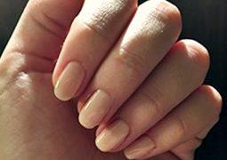 COLUNISTA ESPECIAL: Ter unhas lindas e saudáveis vai além do cuidado com manicure?