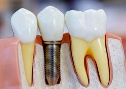 Implante Dentário: Odonto Company traz super novidade para São Gotardo e Região