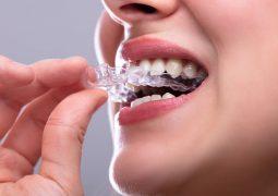 Saúde Bucal: O que é um aparelho ortodôntico ou dentário?
